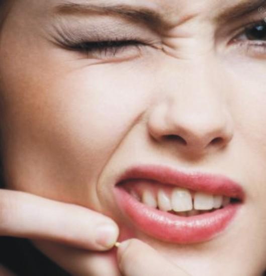 acne-remédio